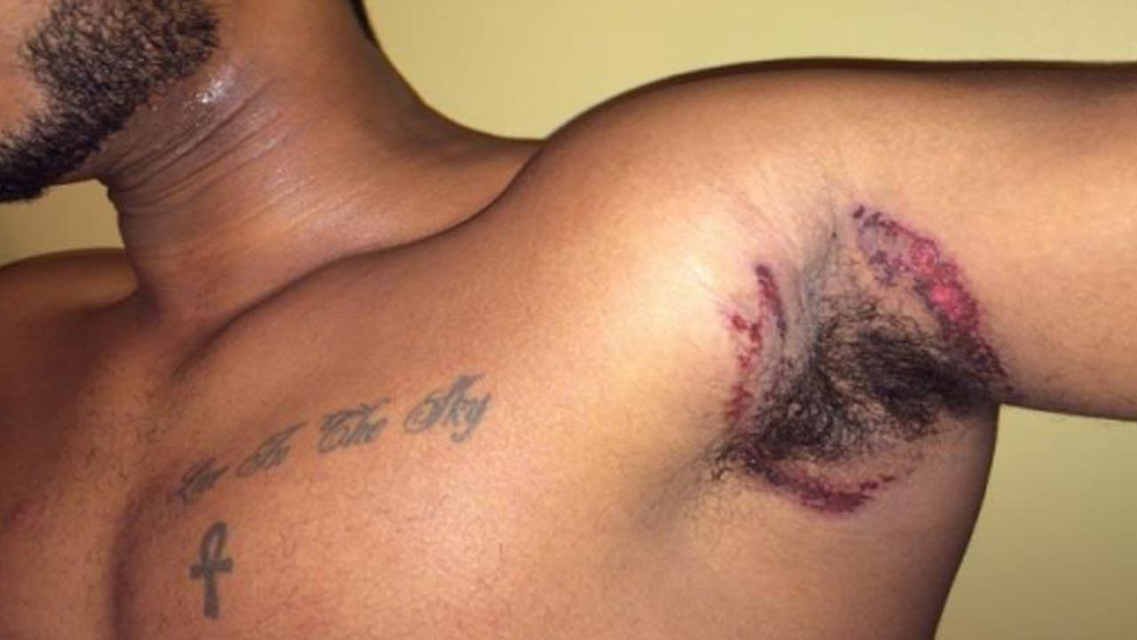 Rodney Colley displays injuries he says he suffered from using Old Spice deodorant, according to a class-action lawsuit.