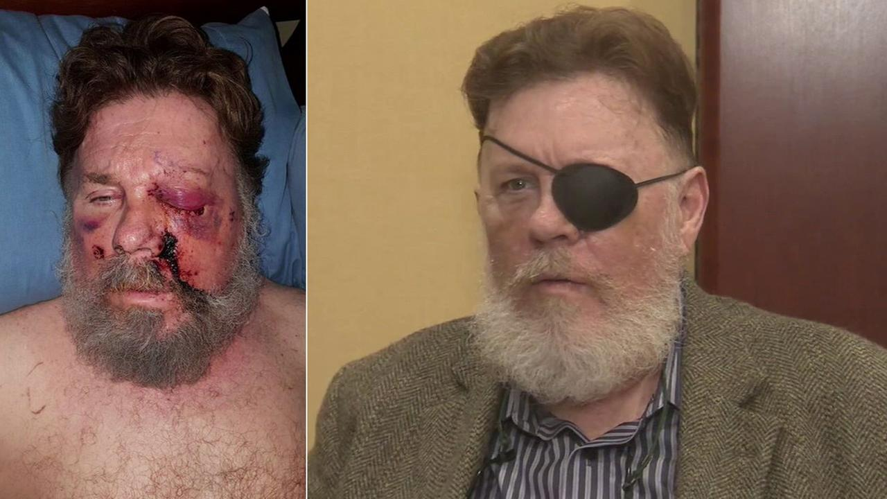 An Orange County man who lost an eye when his electronic cigarette exploded in his face last month told Eyewitness News his story for the first time on Tuesday, May 10, 2016.