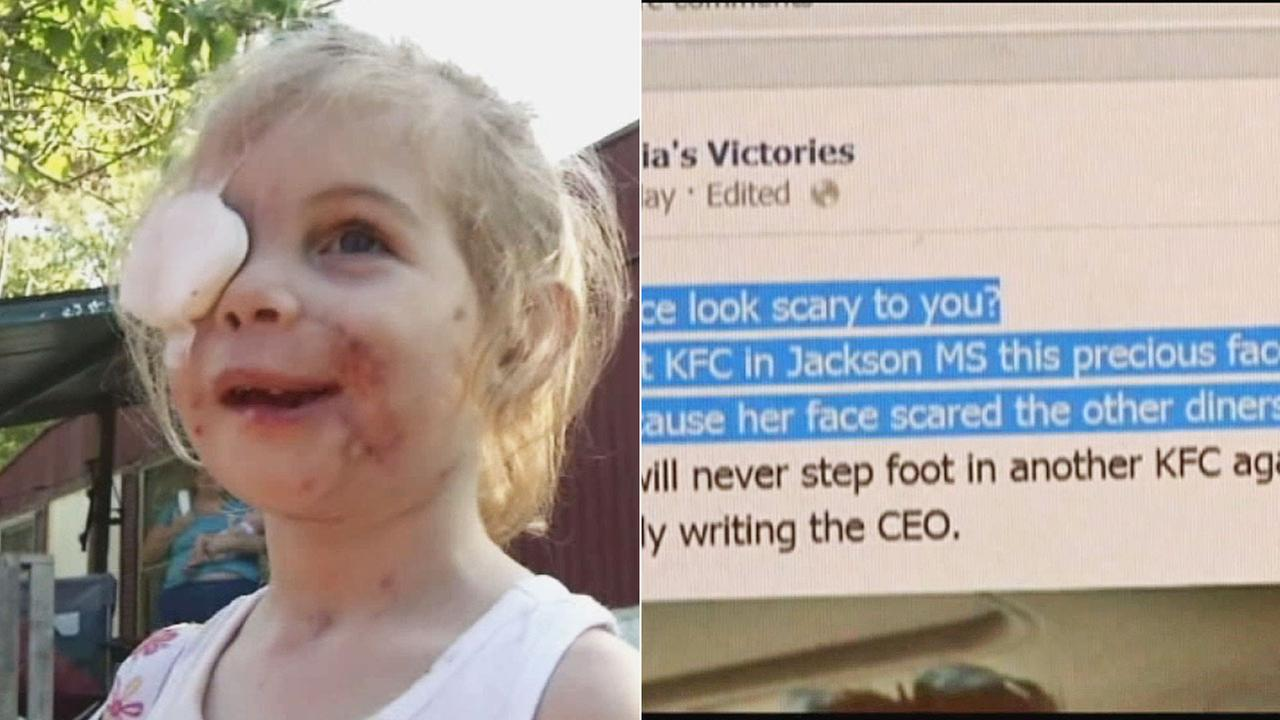 KFC says two investigations found no evidence that a 3-year-old girl mauled by a pit bull was asked to leave a restaurant because her facial scarring was disturbing customers.