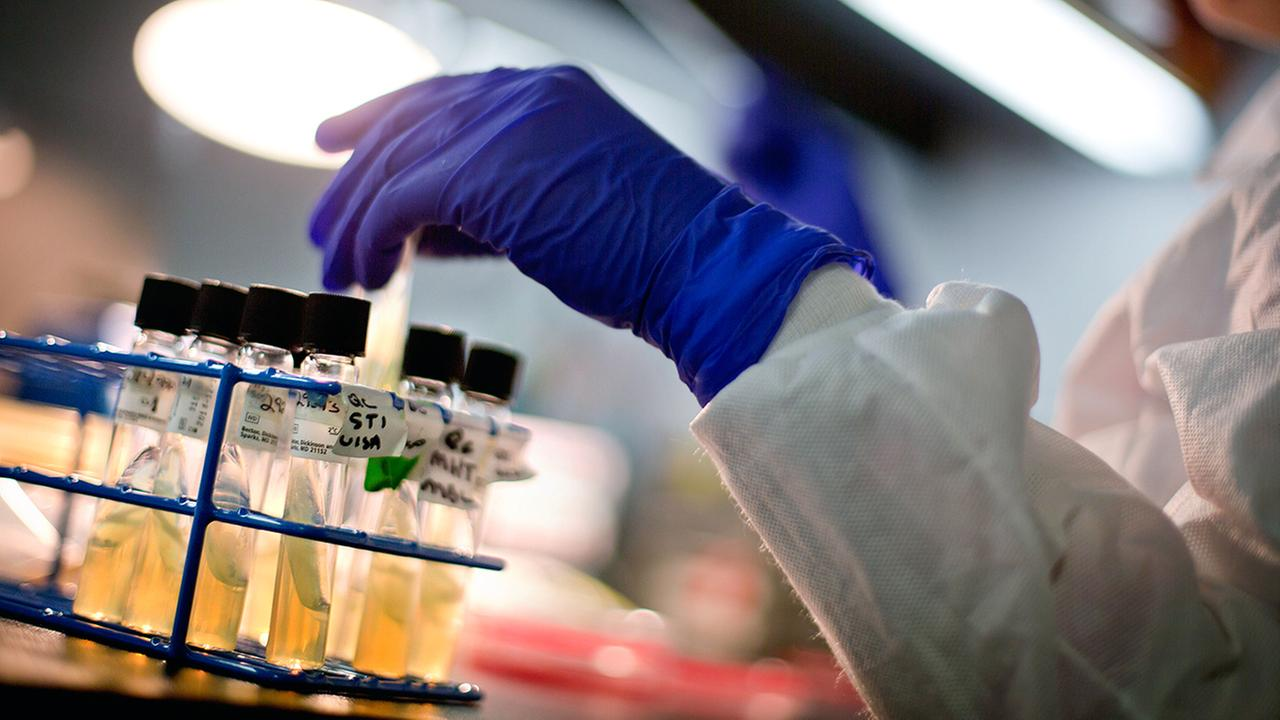 In this file photo, a microbiologist works with tubes of bacteria samples in an antimicrobial resistance and characterization lab at the Centers for Disease Control and Prevention.