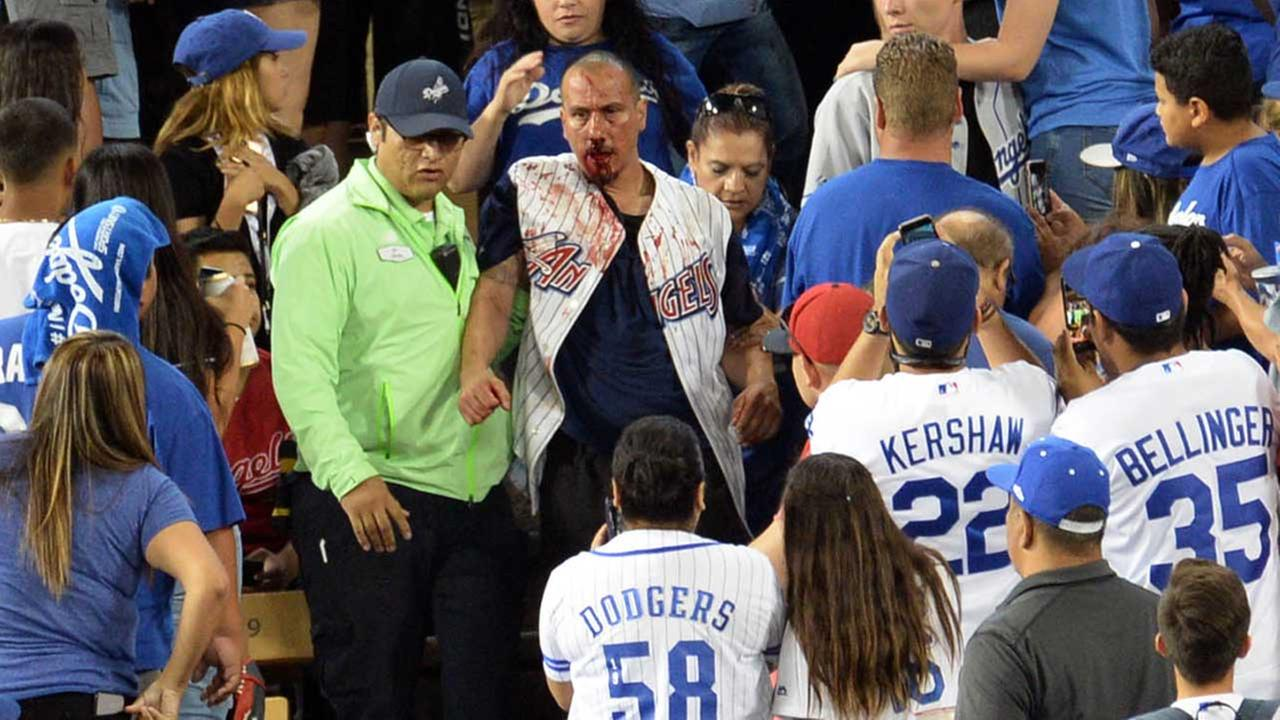 A fan with a bloodied face is led away by security at Dodger Stadium on Monday, June 26, 2017.