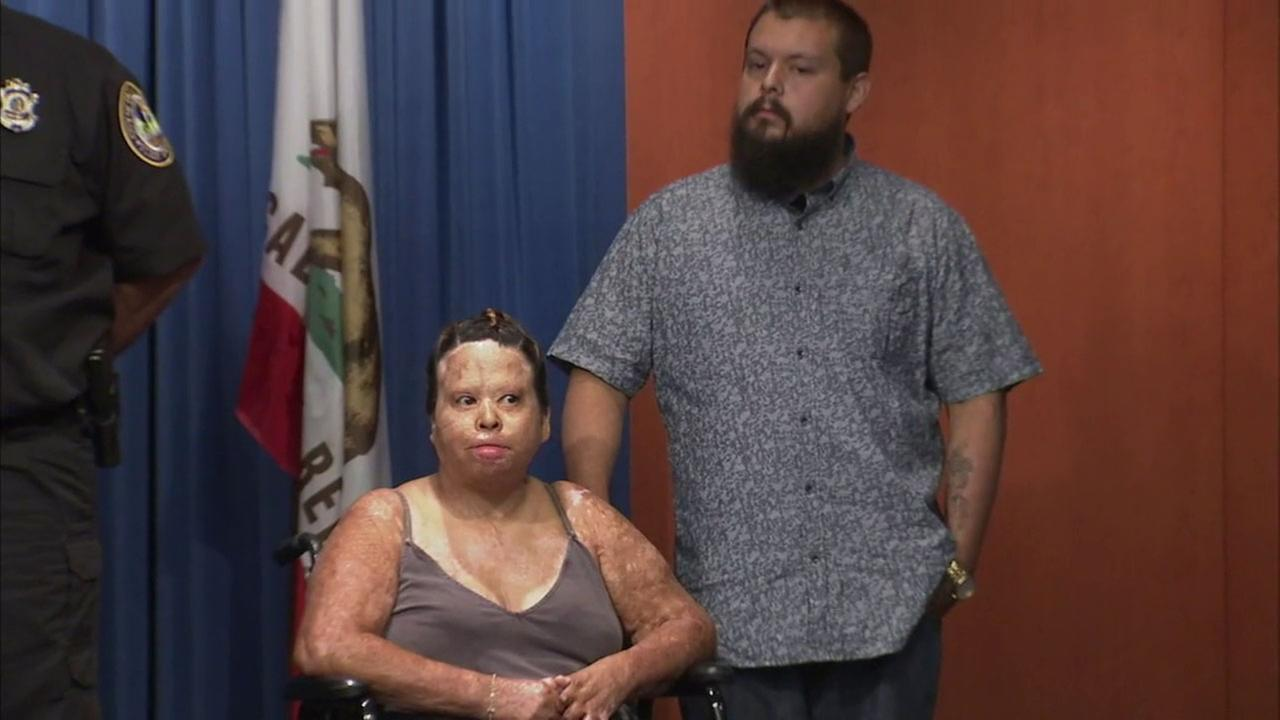 Alex Gonzales and his girlfriend Selina Cervantes were injured in an explosion when he tried to make honey oil at a Palm Springs motel in 2015.