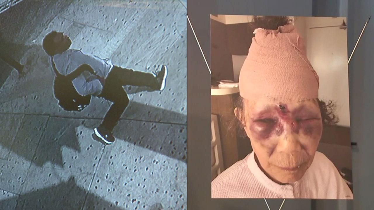 Police released surveillance images of a person of interest in the beating of an 86-year-old woman in Koreatown.