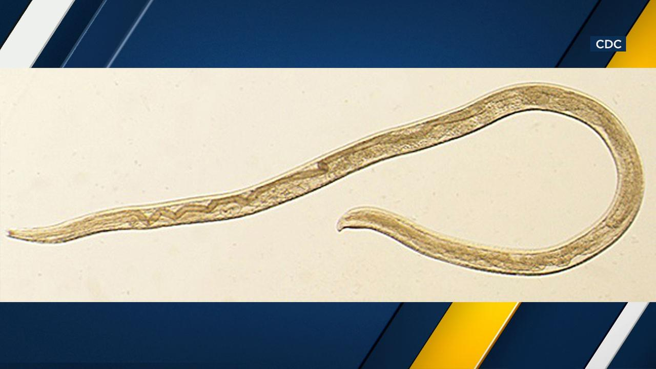 This photo provided by the CDC shows Thelazia gulosa, a type of eye worm seen in cattle in the northern United States and southern Canada, but never before in humans.
