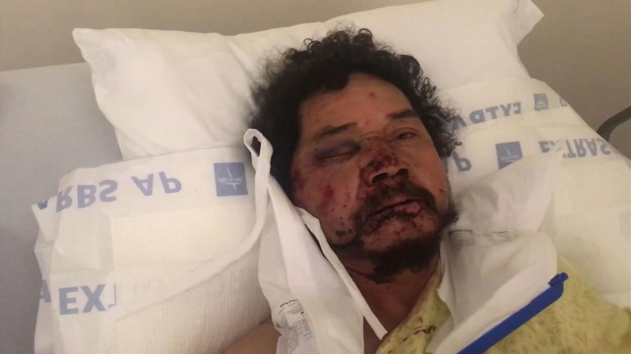 Street vendor Pedro Reyes was viciously beaten by a group of men and one woman near Exposition Park.