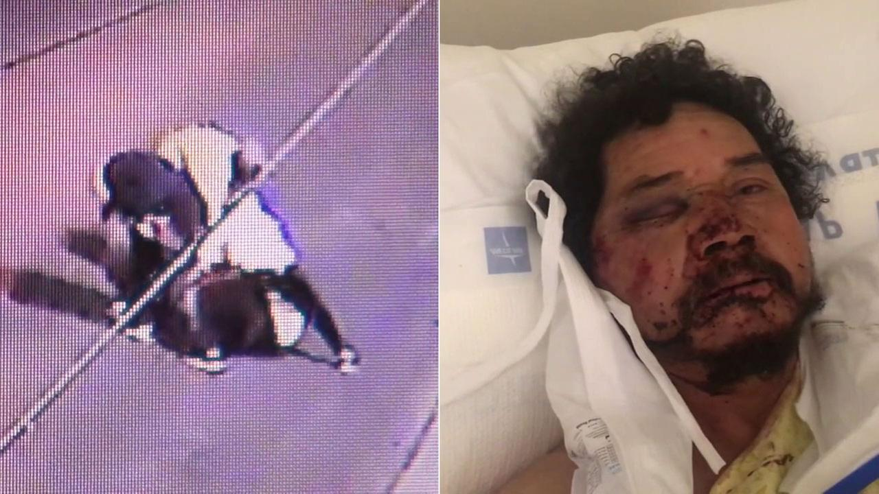 A group of people attacked and robbed street vendor Pedro Reyes near Exposition Park, sending him to the hospital with severe injuries.