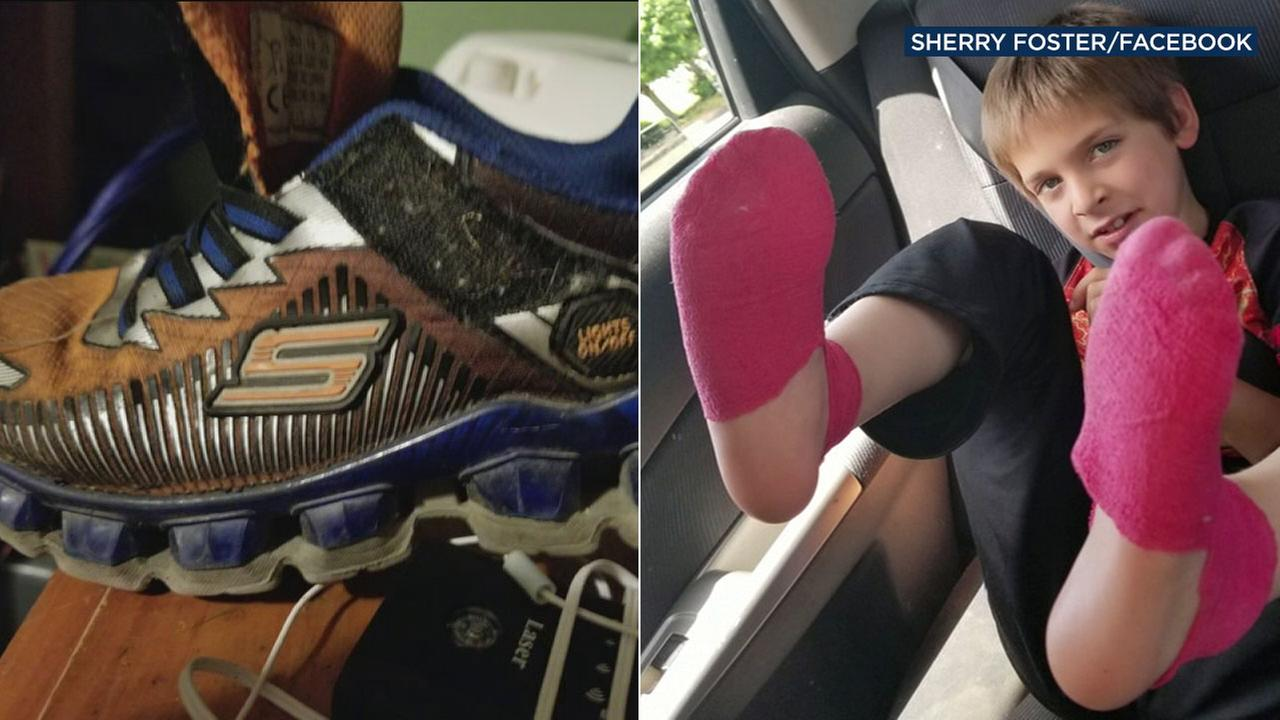 A mother in New York is sending out a warning after her sons feet were burned by a pair of Skechers tennis shoes.