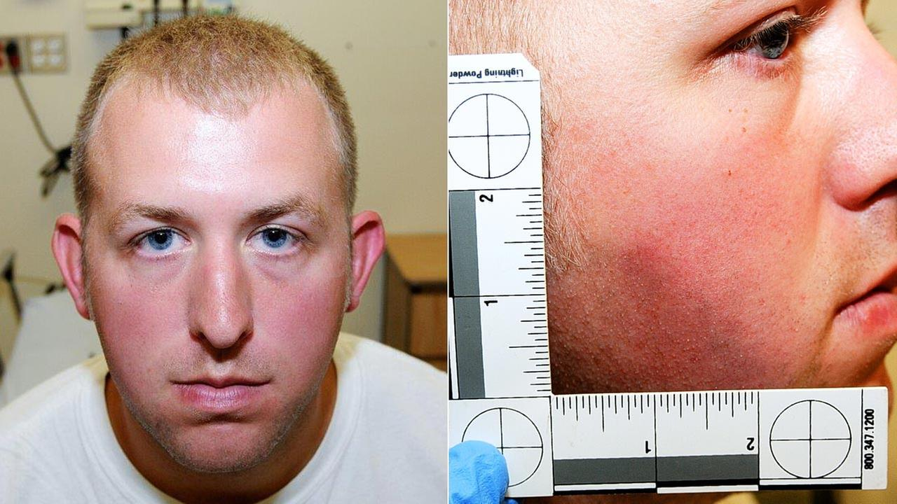 Darren Wilson Medical Report - 8/9/14 (Emergency Room)