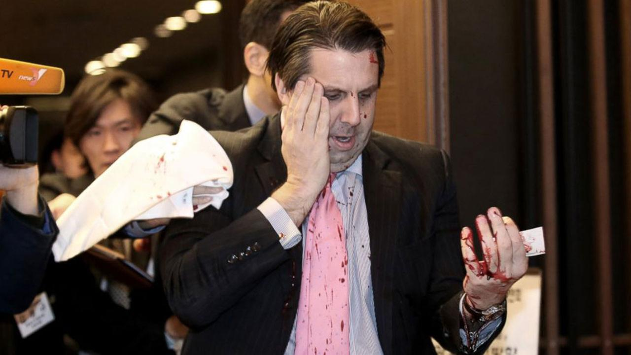 U.S. Ambassador to South Korea Mark Lippert leaves a lecture hall for a hospital in Seoul, South Korea, March 5, 2015, after being attacked by a man.