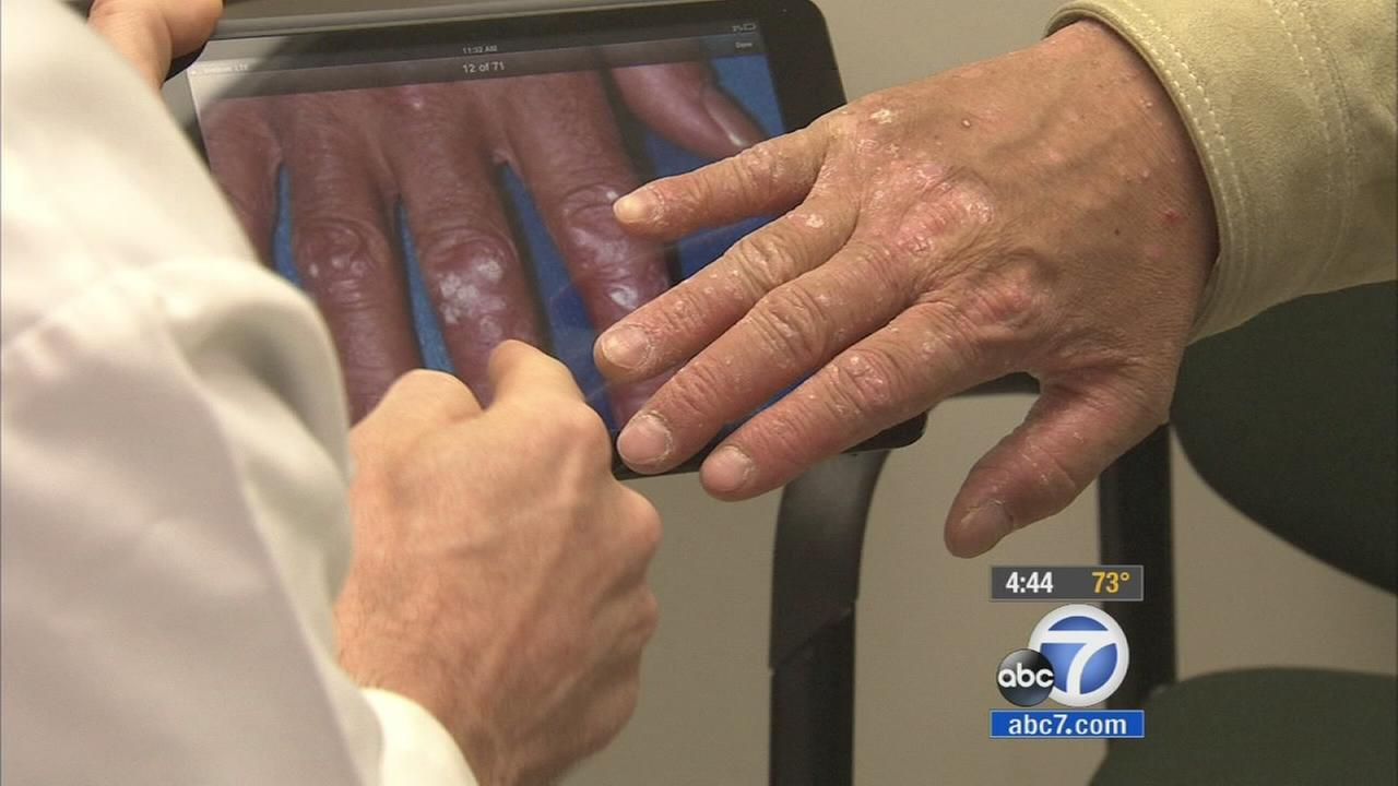 Sending a cellphone selfie of a suspicious mole or rash may lead to the same diagnosis as an in-person doctor visit.