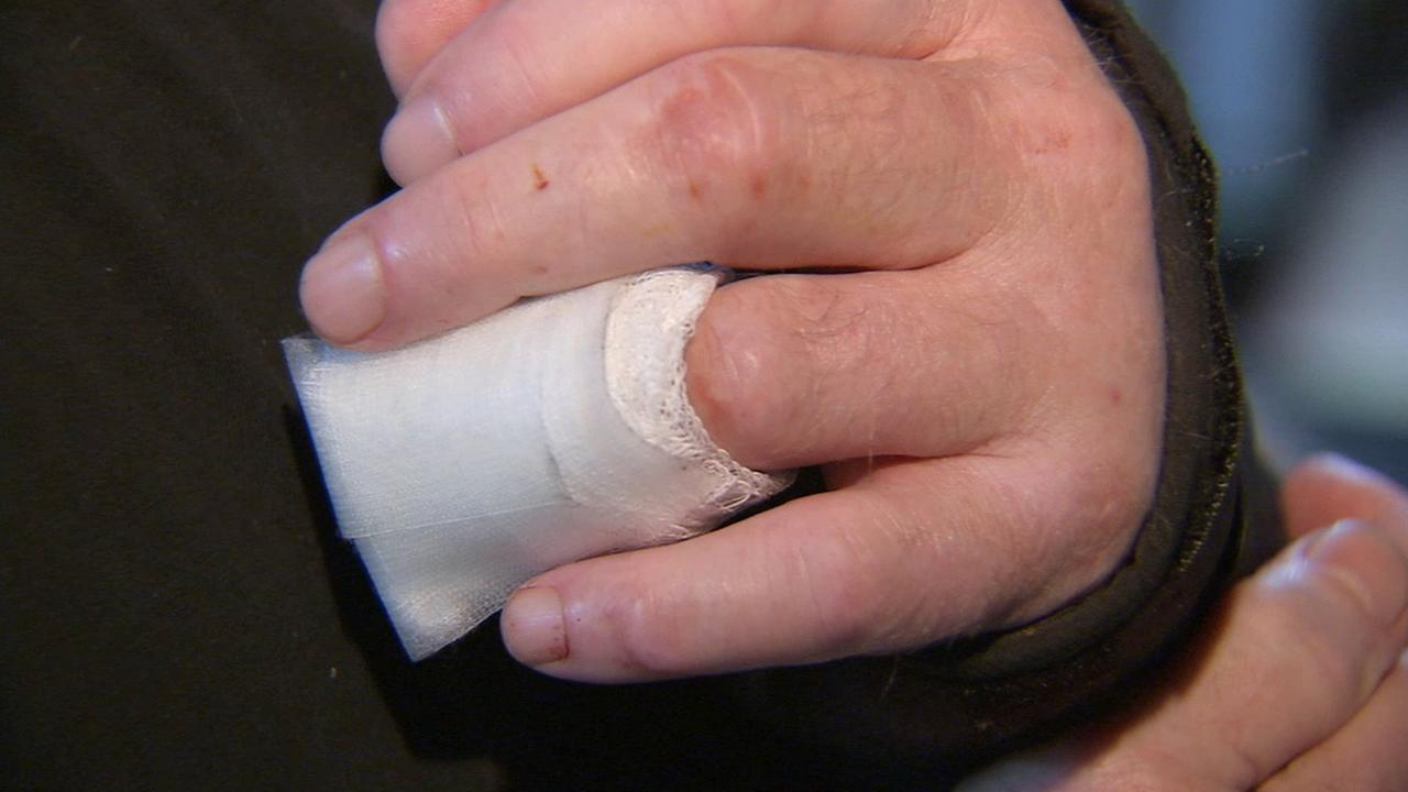 A Venice restaurant owner had his fingertip bitten off by another man on Saturday, March 21, 2015.