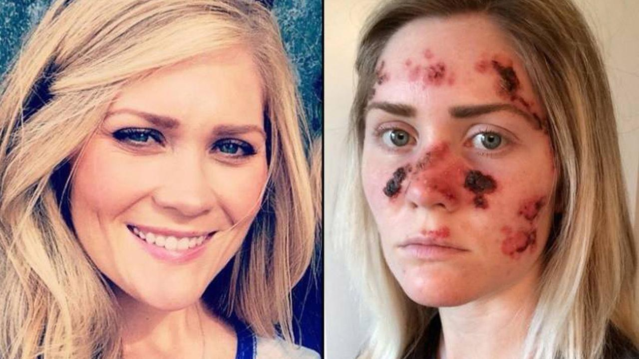 Tawny Willoughby, 27, shared pictures of herself while she is battling skin cancer.