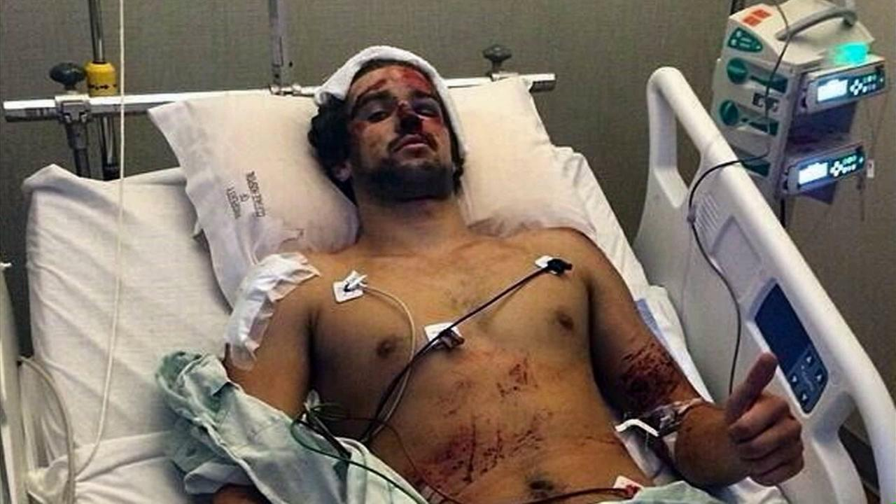 Nick Pasichuke is seen in a hospital bed recovering after he was struck by Elliot Rodgers car during the deadly rampage in Isla Vista on Monday, May 26, 2014.
