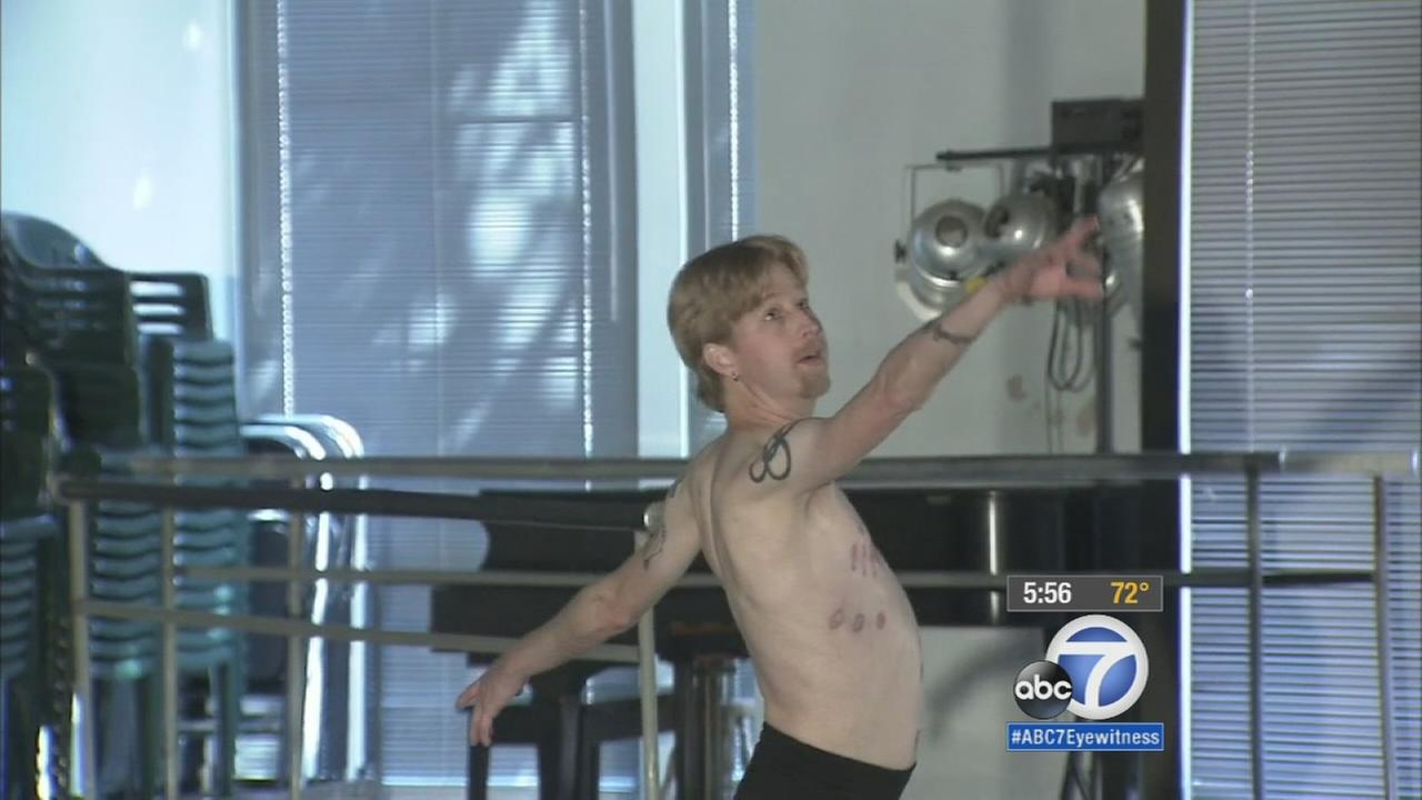 Ballet dancer to perform again after overcoming challenges