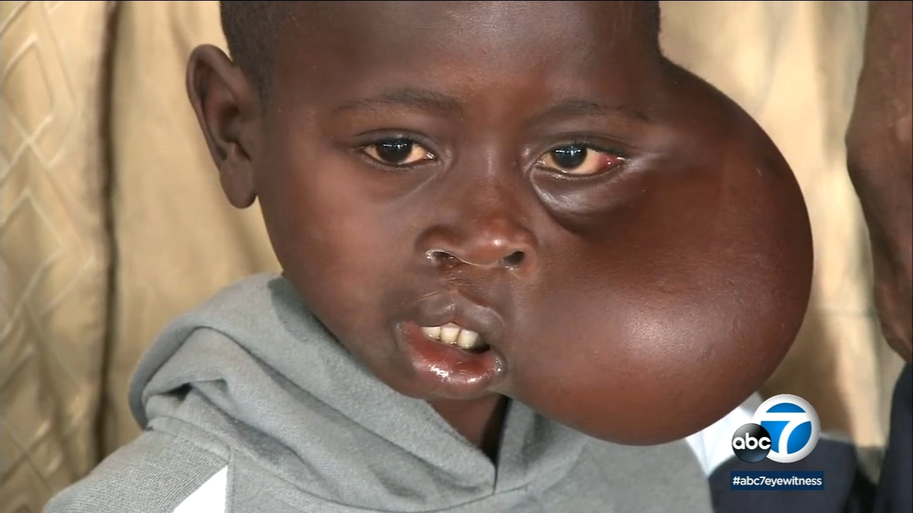 Matadi, 8, is shown as he arrived in Los Angeles to receive his life-saving surgery.