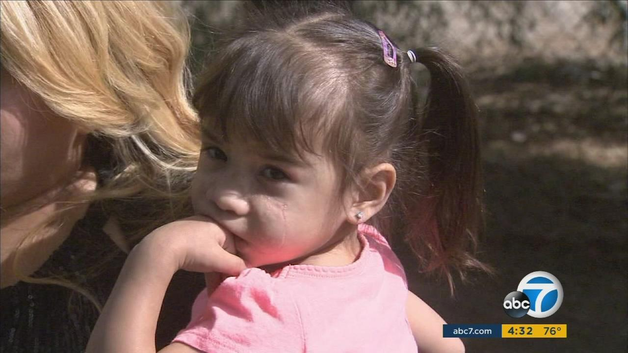 Surgery helped restore the face of 2-year-old Mariah Salomon after a dog attack.