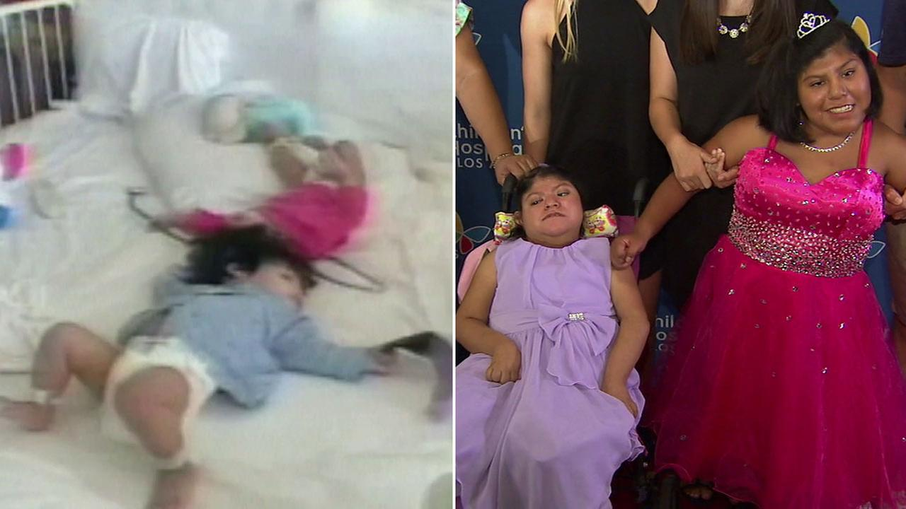 Formerly conjoined twins, affectionately known as the Two Marias, are shown in these photos.