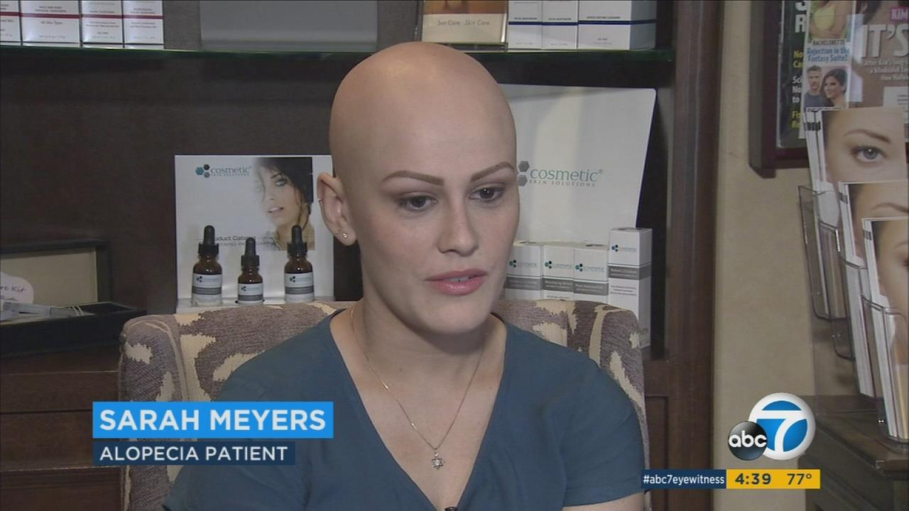 Sarah Meyers, 15, was diagnosed with alopecia universalis, a condition that resulted in the complete loss of her eyebrows, eyelashes and the hair on her scalp.