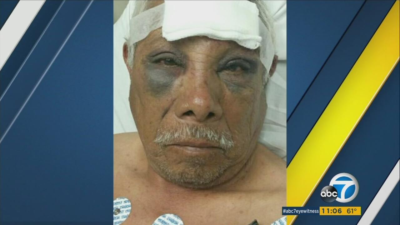 David Juan Martinez, 71, was brutally beaten while selling ice cream in a North Hollywood neighborhood on Tuesday, Oct. 11, 2016.