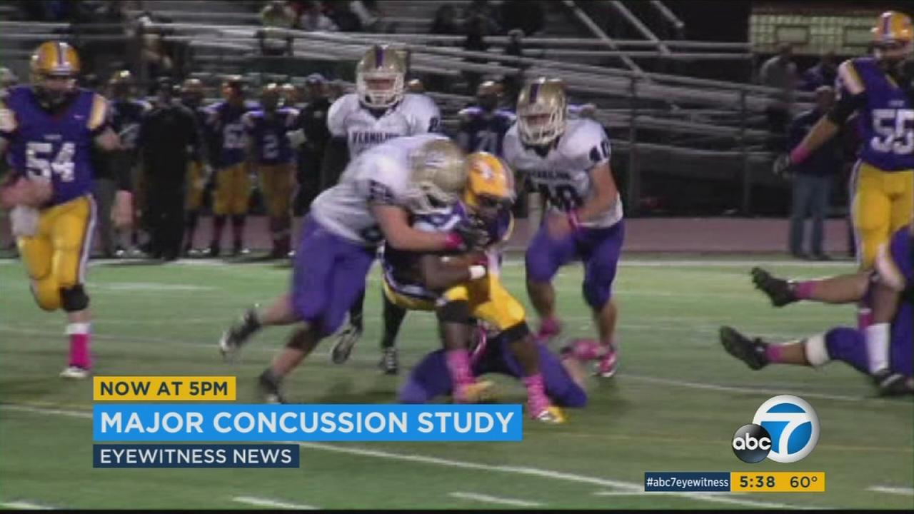Officials said 11,000 student-athletes and cadets were participating in the largest concussion study ever conducted.