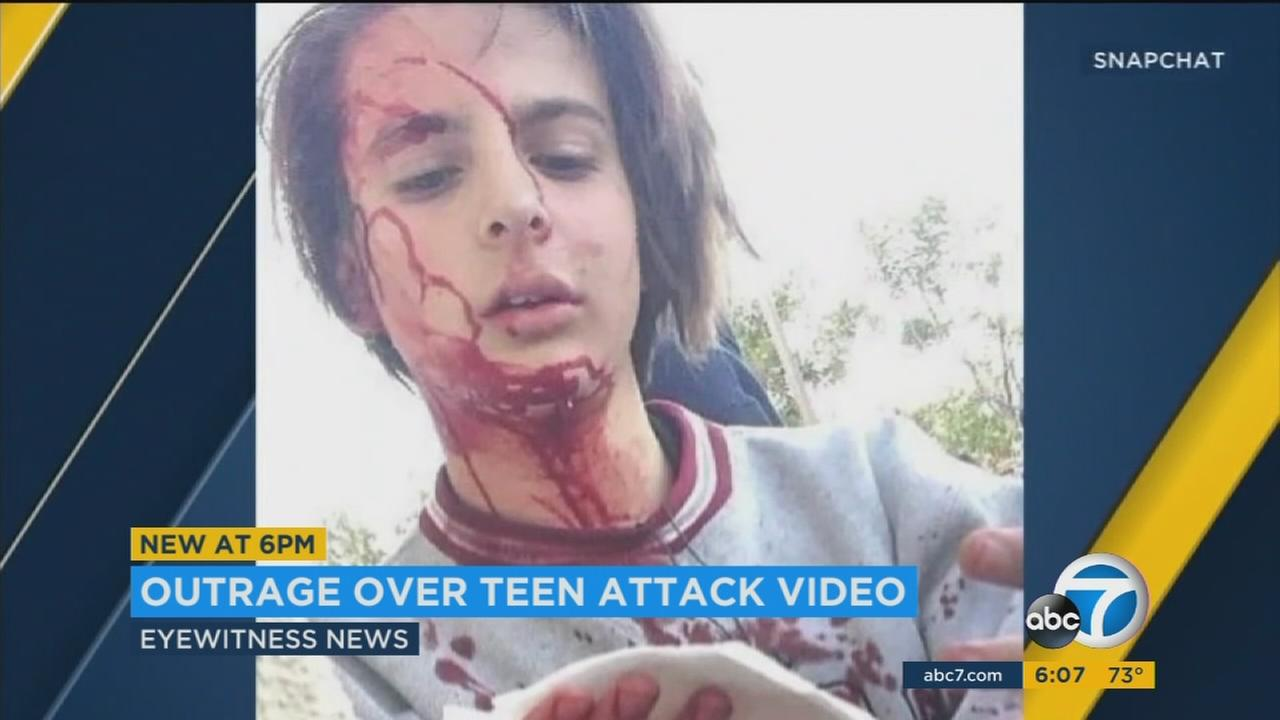 High school student Jordan Peisner is seen in a social media post after he was attacked in December.