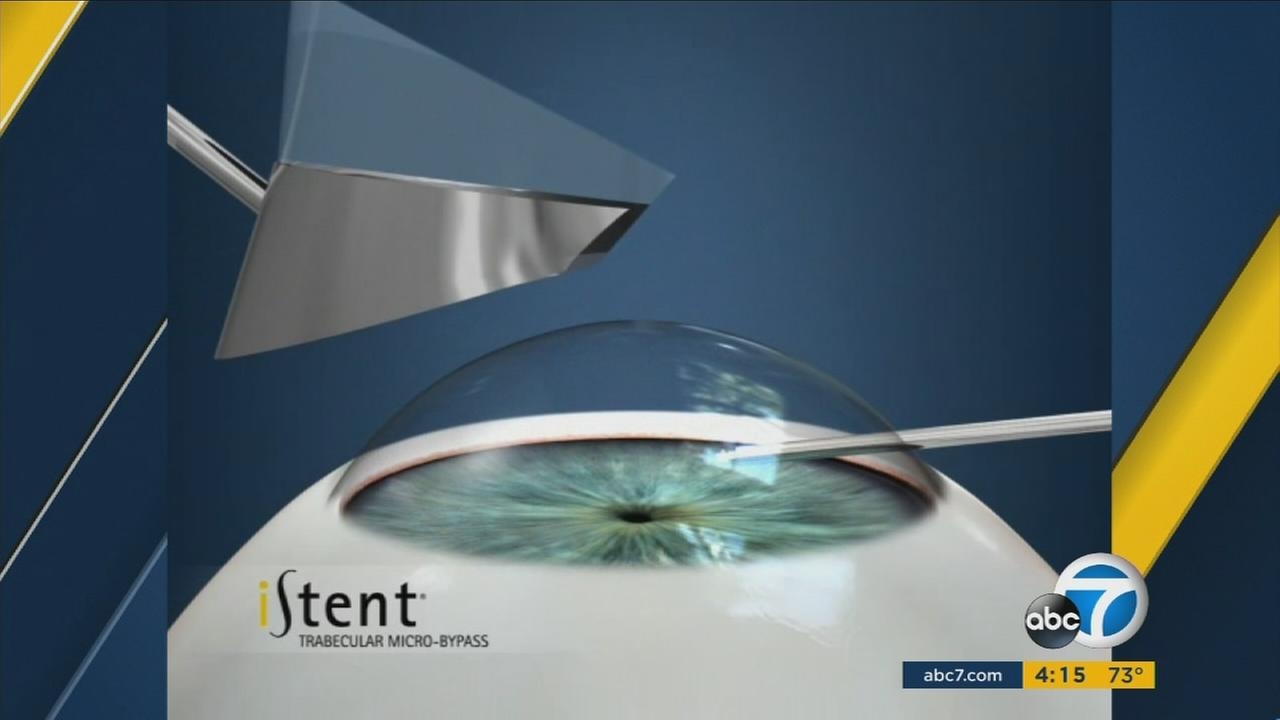 The implantation of the iStent device is shown in a rendering.
