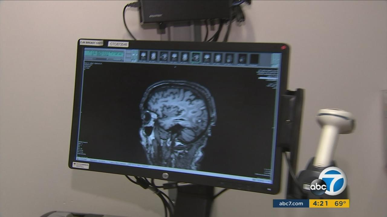 Targeted therapy being tested in SoCal gives brain cancer patients hope