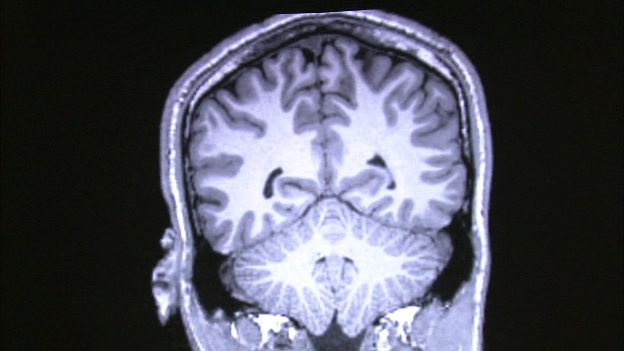 An undated photo of a brain scan that shows symptoms of Alzheimers disease.