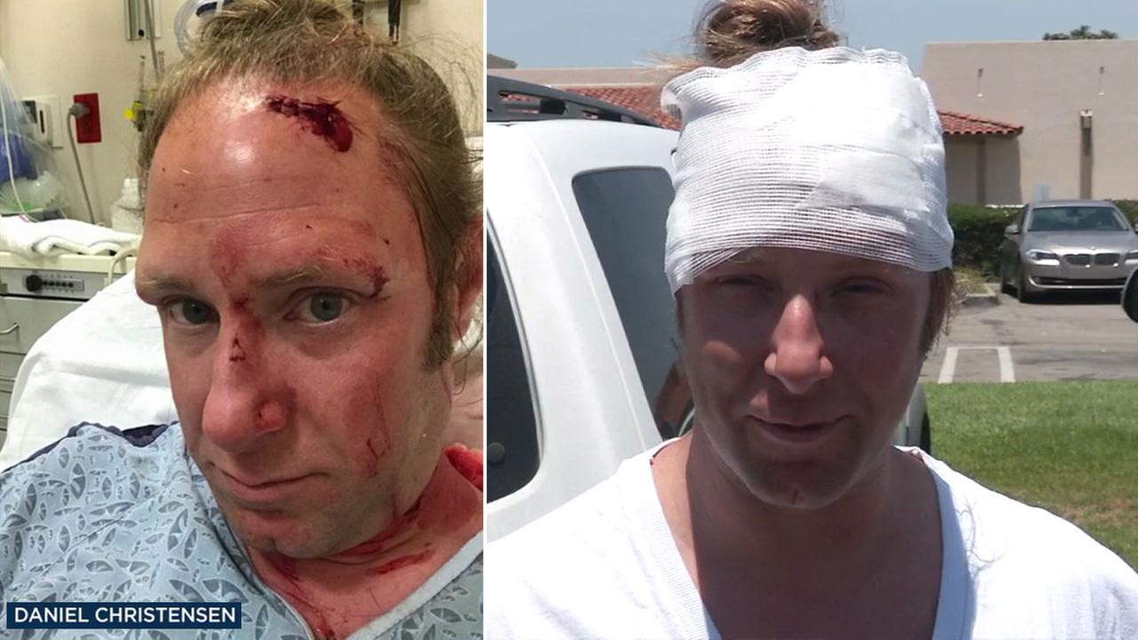 Daniel Christensen required 12 stitches after being attacked during a road rage incident Wednesday morning in Stanton.