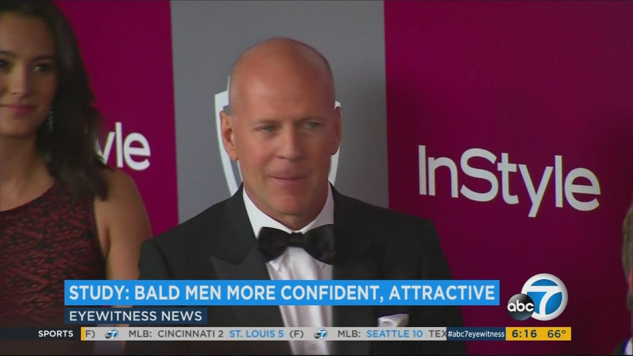 A new study finds it just might be better to be bald.