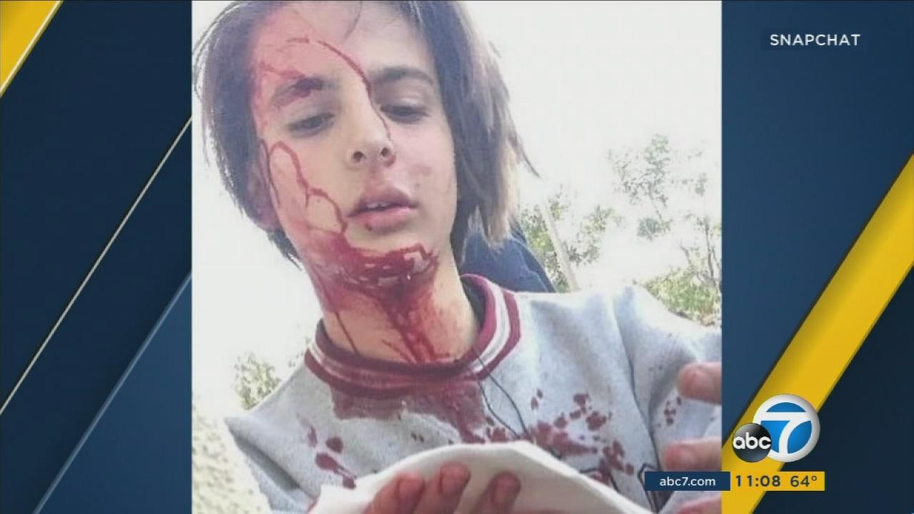 An undated photo of West Hills teen Jordan Peisner, who was beaten and whose attack was posted to Snapchat.