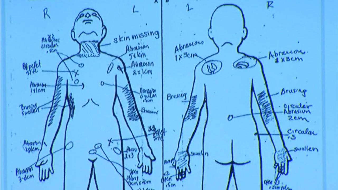 A chart shows the recorded injuries a nurse found on Gabriel Fernandezs body before he died on May 22, 2013. These images were shown in court on Friday, Oct. 20, 2017.