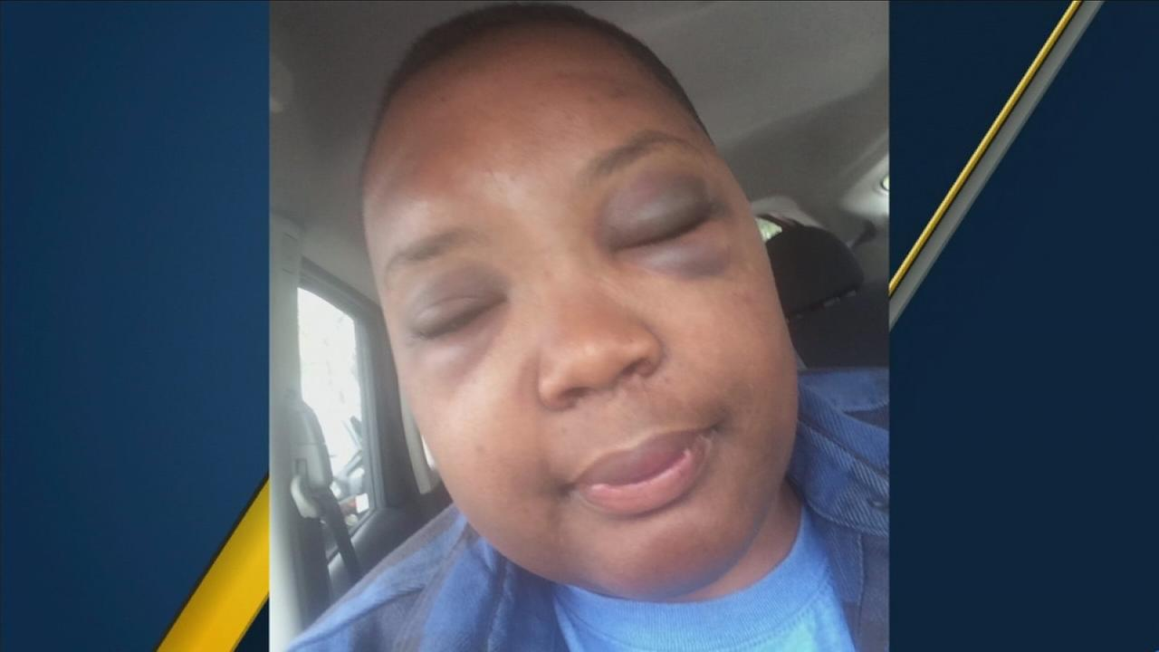 A photo of Sabrina Hooks shows her injuries after she was beaten in South Los Angeles over being gay.