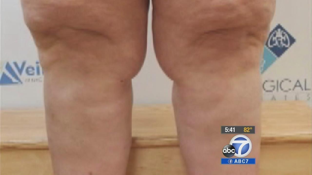 Legs affected by lipedema.