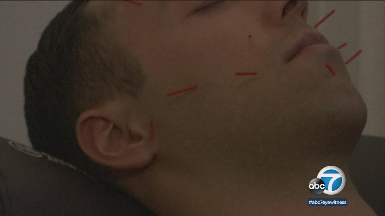 A man is shown getting acupuncture on his face at Modern Acupuncture in Aliso Viejo.