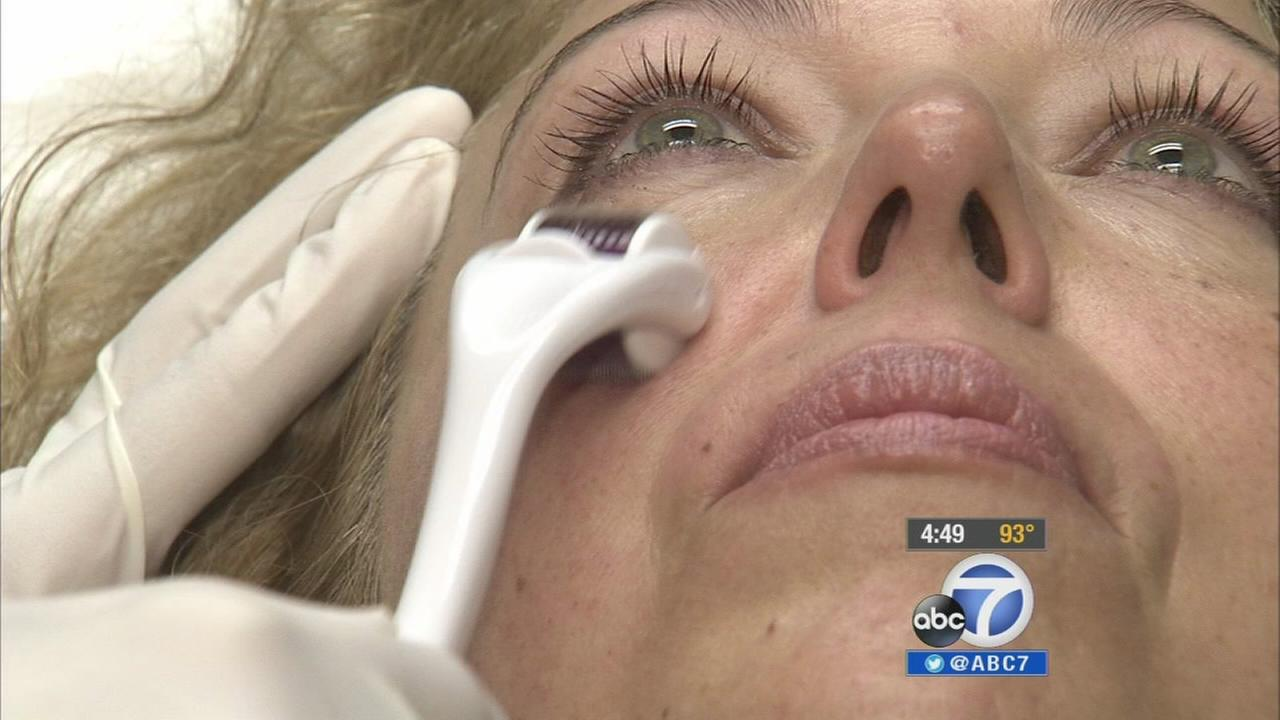An at-home dermatological device could reduce dark spots, acne scars and wrinkles on the face if used properly.