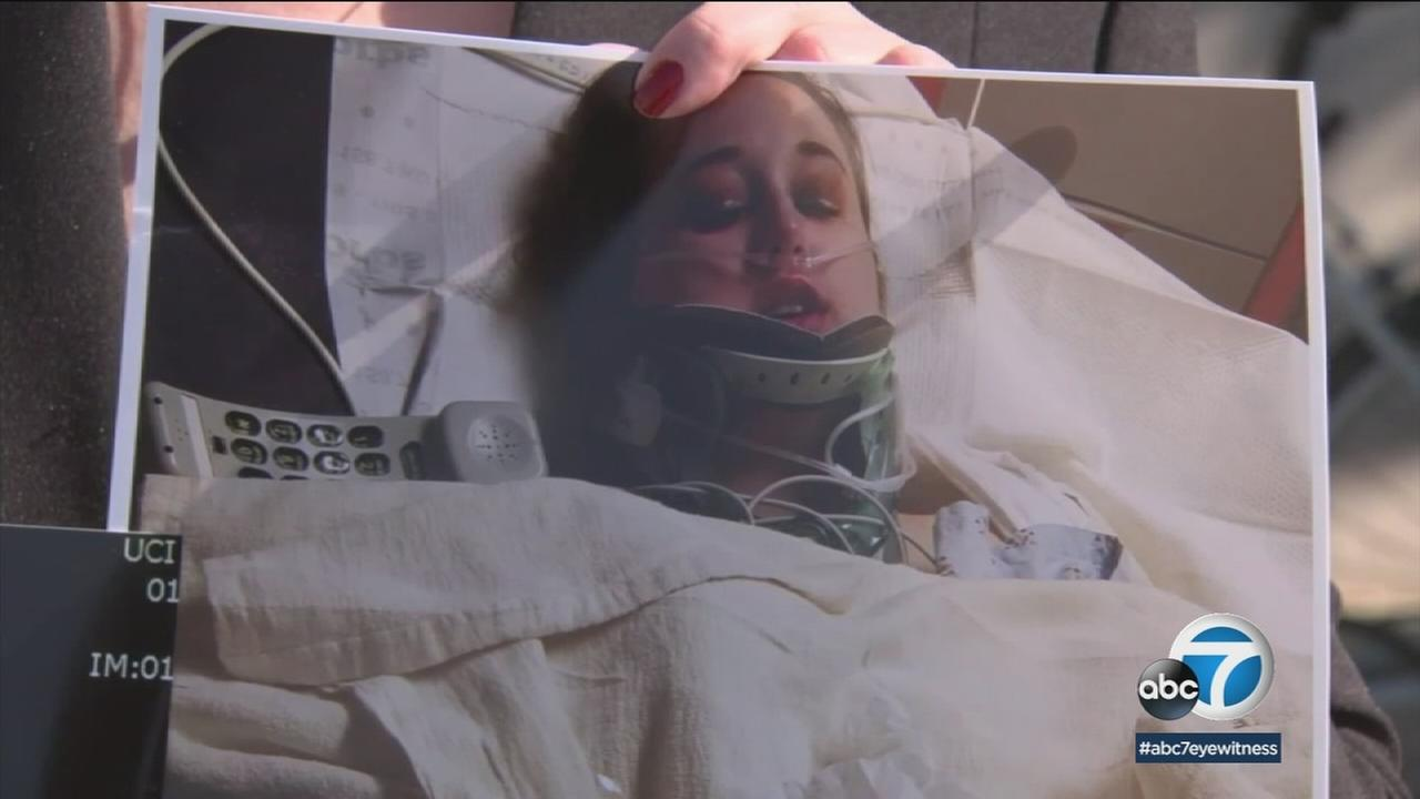 Jessica Weber, a CSU Fullerton student, is shown after being severely injured by a drunk hit-and-run driver.
