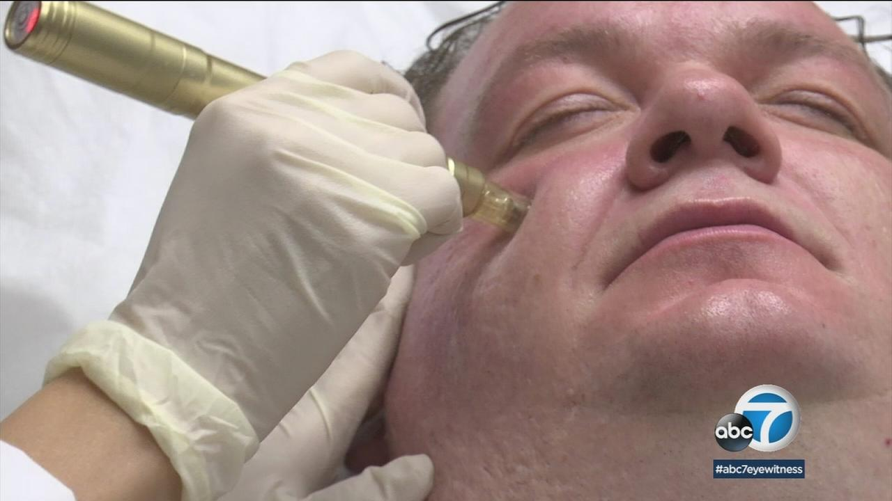 Matthew Sandlin receives a microneedling treatment at the doctors office.