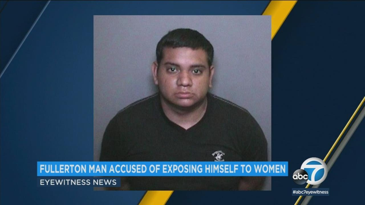 A man accused of exposing himself to three women in Orange County is facing criminal charges, and prosecutors are looking for more potential victims.