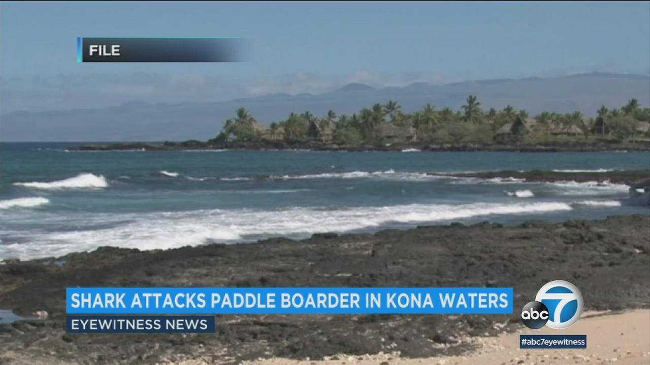 A paddle boarder is fighting for his life after a shark attack in Hawaii.