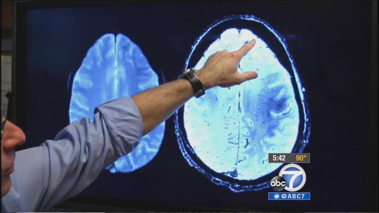 Ucla Study Non Drug Treatment May Improve Memory In Alzheimer S