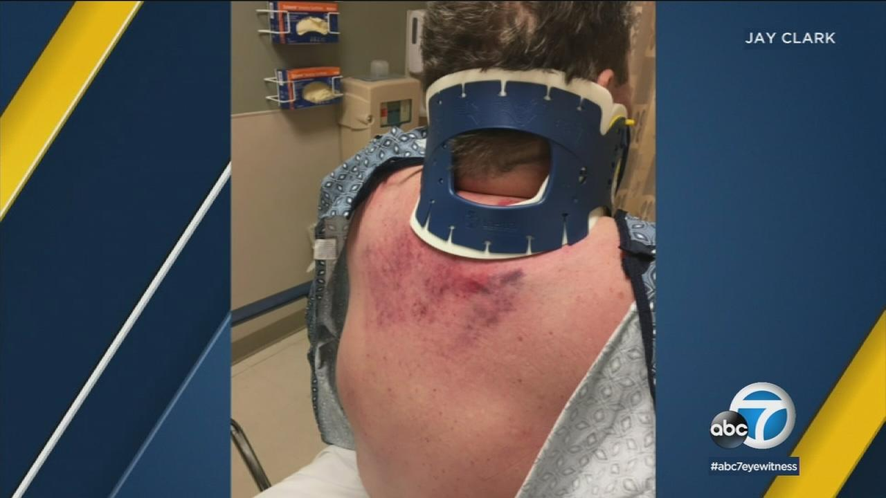 A photo shows some of the severe injuries a couple suffered after a suspected DUI crash involving an off-duty LAPD officer in Palmdale.