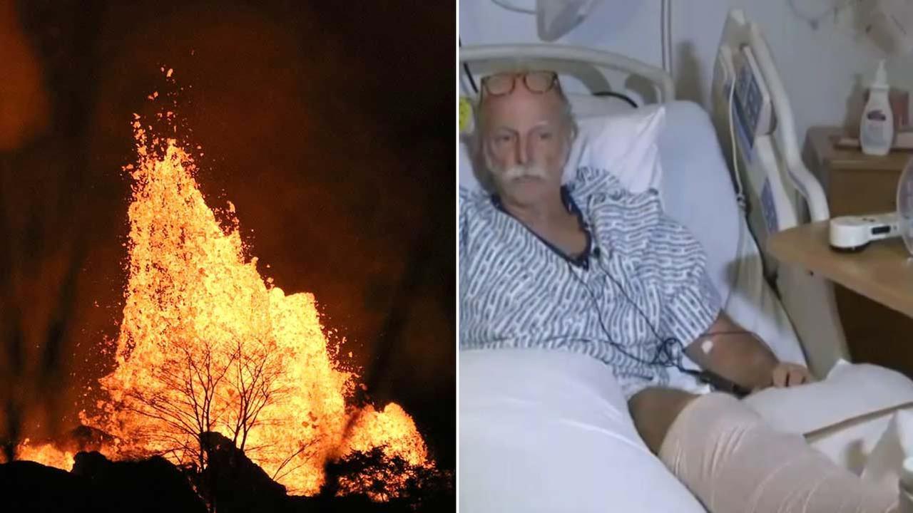 (Left) Lava explodes above a tree on Kilauea volcano, Sunday, May 20, 2018 near Pahoa, Hawaii. (Right) Darryl Clinton speaks from a hospital bed in Hawaii.