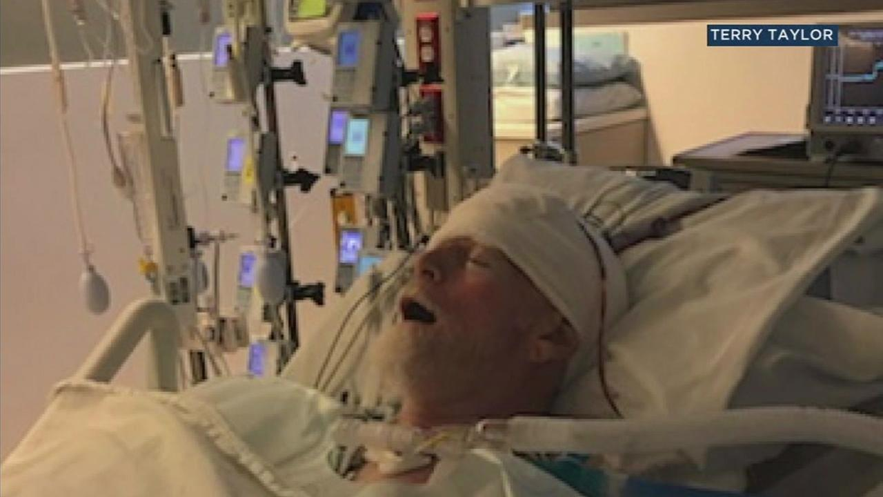 Malibu craftsman Stafford Taylor, 64, is shown after he underwent brain surgery at a local hospital.