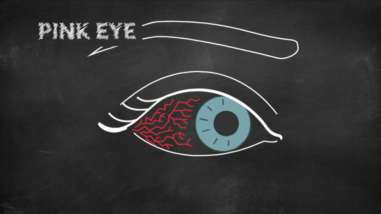 An illustration of pink eye is shown in a photo.