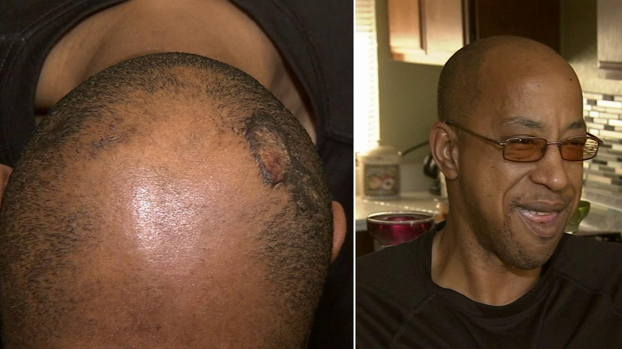 An Uber driver was attacked by two men after picking them up from a New Years party in Long Beach. He suffered multiple injuries, and his jaw is wired shut.