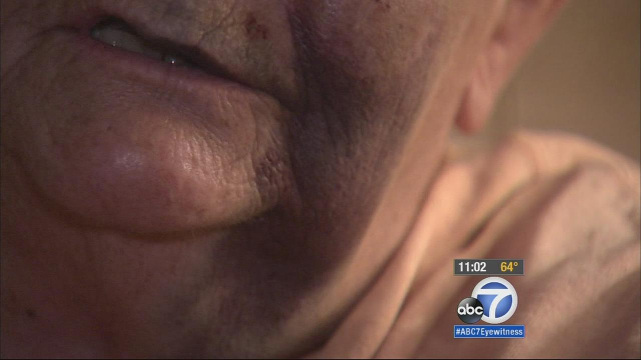 A senior citizen is shown with bruises on her face after being attacked in her driveway in Fontana on Saturday, May 30, 2015.