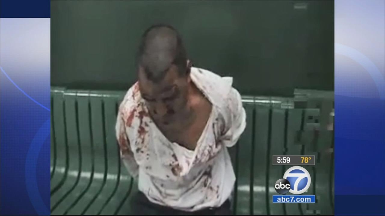 Eyewitness News has obtained exclusive video of an interview with a jail visitor right after he was allegedly beaten by Los Angeles County sheriffs deputies.