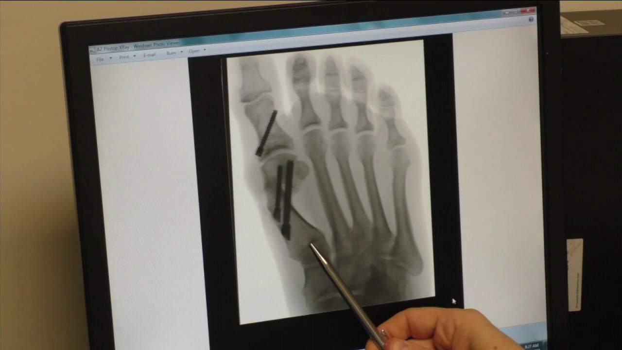 An x-ray image of the minimally invasive bunion surgery is shown.