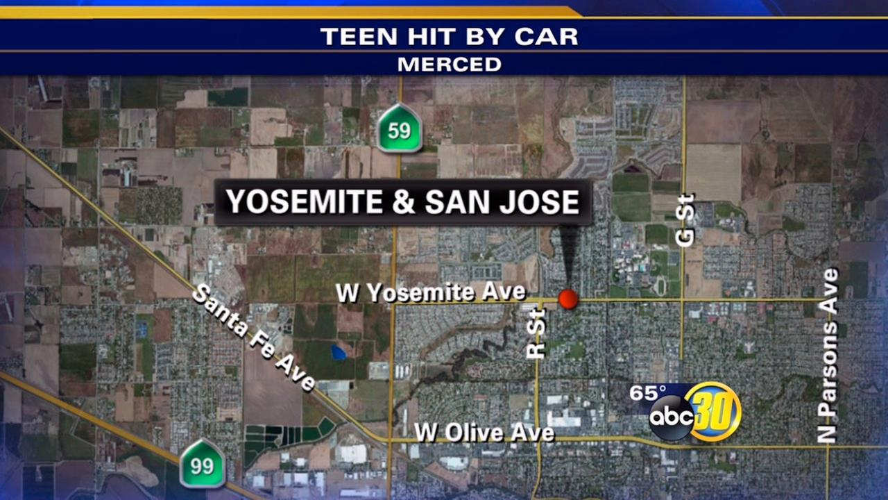Woman, 19, struck by car in Merced